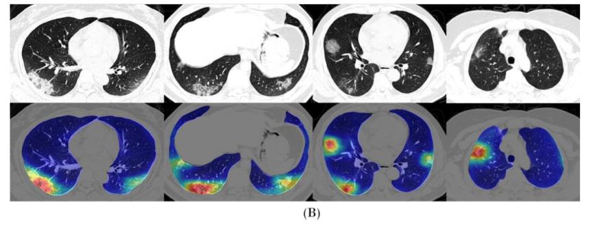 CT-Image-coronoavirus-deeplearning